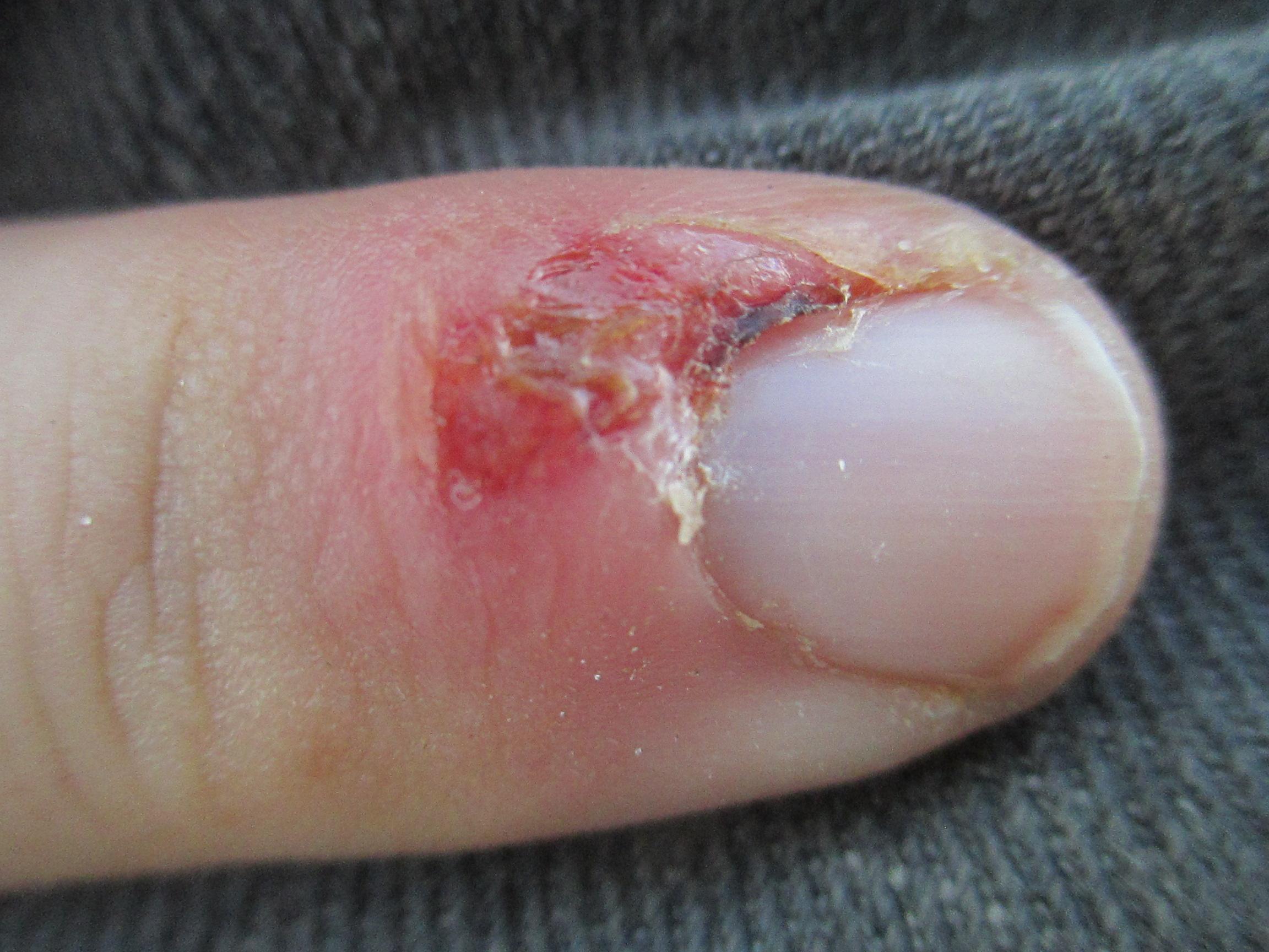 ingrown fingernail – Richard T. Reilly